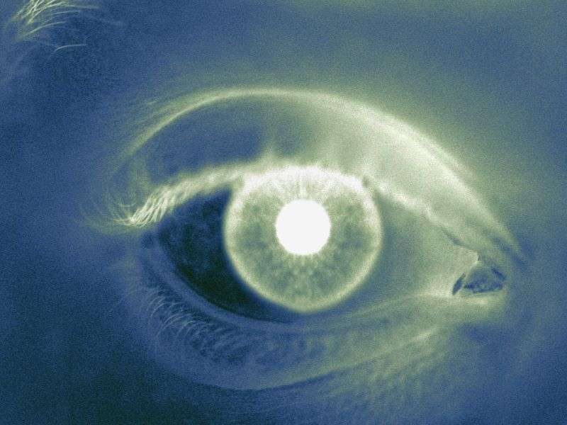 News Picture: Another Tragedy Tied to Opioids: Eye Disease