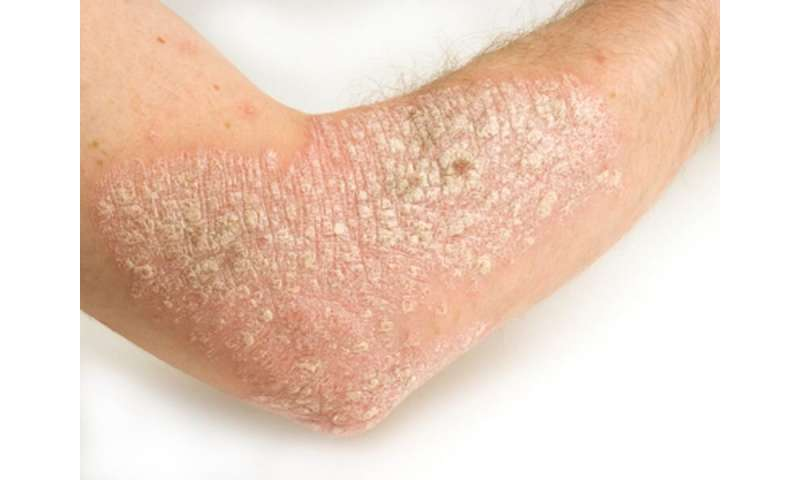 Cardiovascular risk up with metabolic syndrome in psoriasis