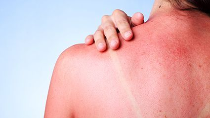 News Picture: Even Winter Carries Skin Cancer Risks for College Students