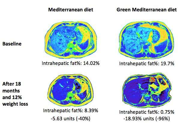 Green med diet cuts non-alcoholic fatty liver disease by half - Ben-Gurion U. study