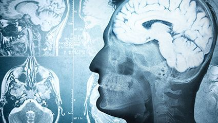 News Picture: Brain May Age Faster After Spinal Cord Injury