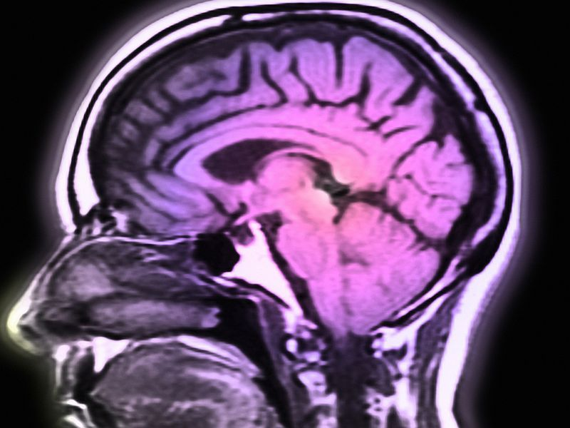 News Picture: Toxin in Undercooked Meat Shows Links to Rare Brain Tumors