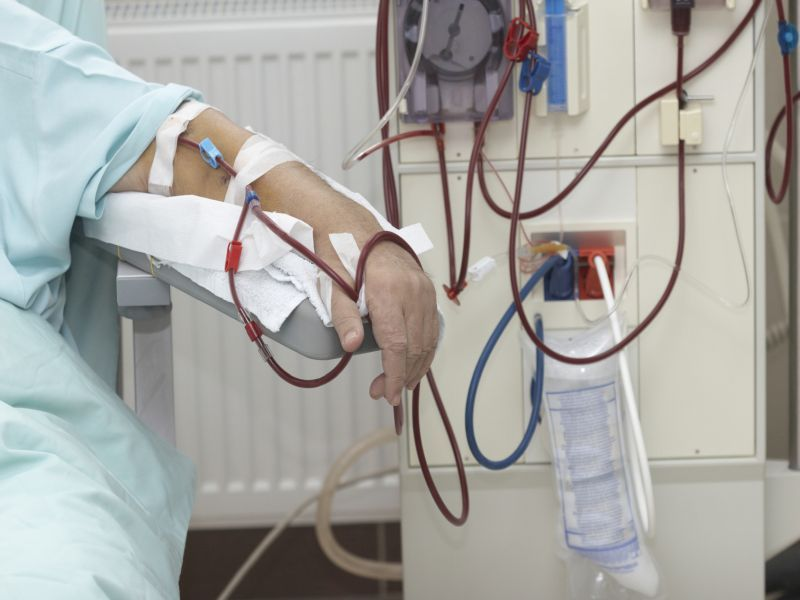 News Picture: Study Casts Doubt on 'Early Warning' System for Kidney Patients