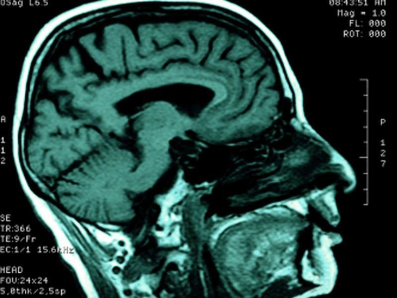 News Picture: Is There a 'Risk-Taking' Center in the Brain?