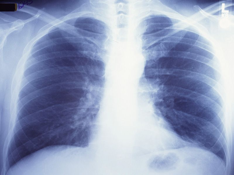 News Picture: Another Deadly Disease for Smokers: Pulmonary Fibrosis