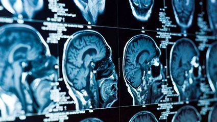 News Picture: Fluid-Filled Spaces in the Brain Linked to Worsening Memory