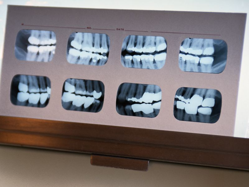 News Picture: Tense Times Mean More Tooth-Grinding, Dentists Warn
