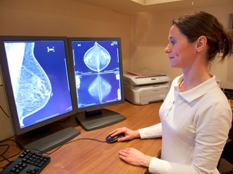 News Picture: Breast Cancer Surpasses Lung Cancer as Leading Cancer Diagnosis Worldwide