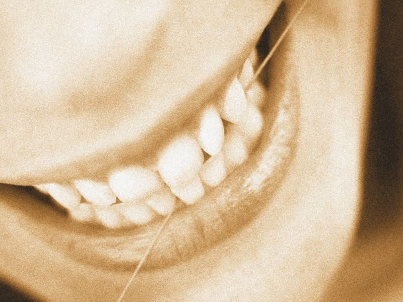 News Picture: Bleeding Gums? You Might Be Lacking Vitamin C