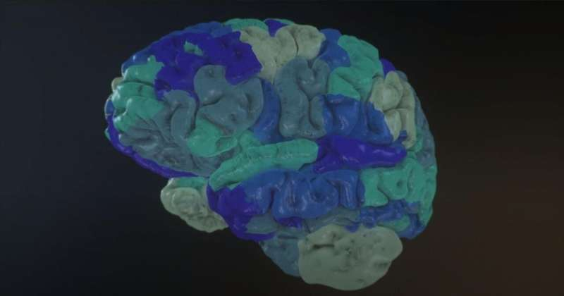 New EBRAINS-enabled tool to help guide surgery in drug-resistant epilepsy patients