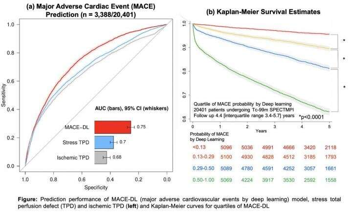 Deep learning with SPECT accurately predicts major adverse cardiac events